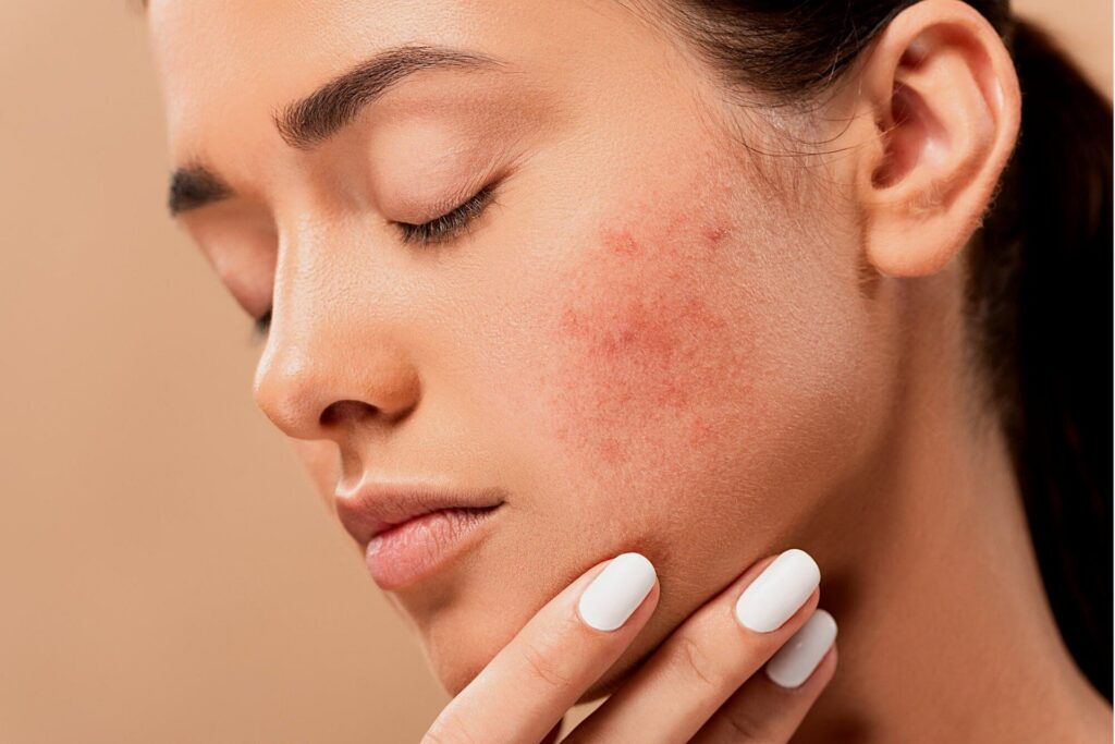 May lead to Pimples and acne